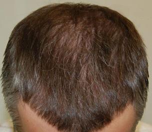Haarverpflanzung Türkei
