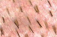 Grafts Haarwurzeln